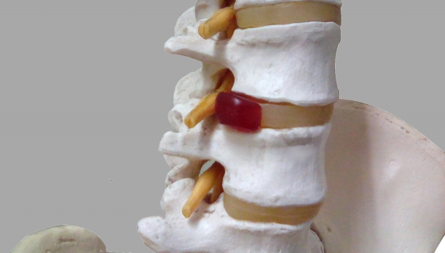 腰椎椎間板ヘルニアとは?